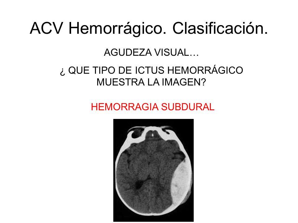 ACV Hemorrágico. Clasificación. AGUDEZA VISUAL… ¿ QUE TIPO DE ICTUS HEMORRÁGICO MUESTRA LA IMAGEN? HEMORRAGIA SUBDURAL