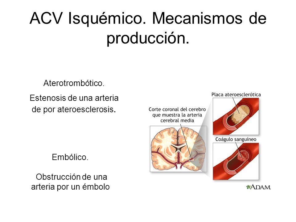ACV Isquémico. Mecanismos de producción. Aterotrombótico. Estenosis de una arteria de por ateroesclerosis. Embólico. Obstrucción de una arteria por un
