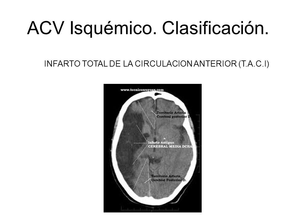 ACV Isquémico. Clasificación. INFARTO TOTAL DE LA CIRCULACION ANTERIOR (T.A.C.I)
