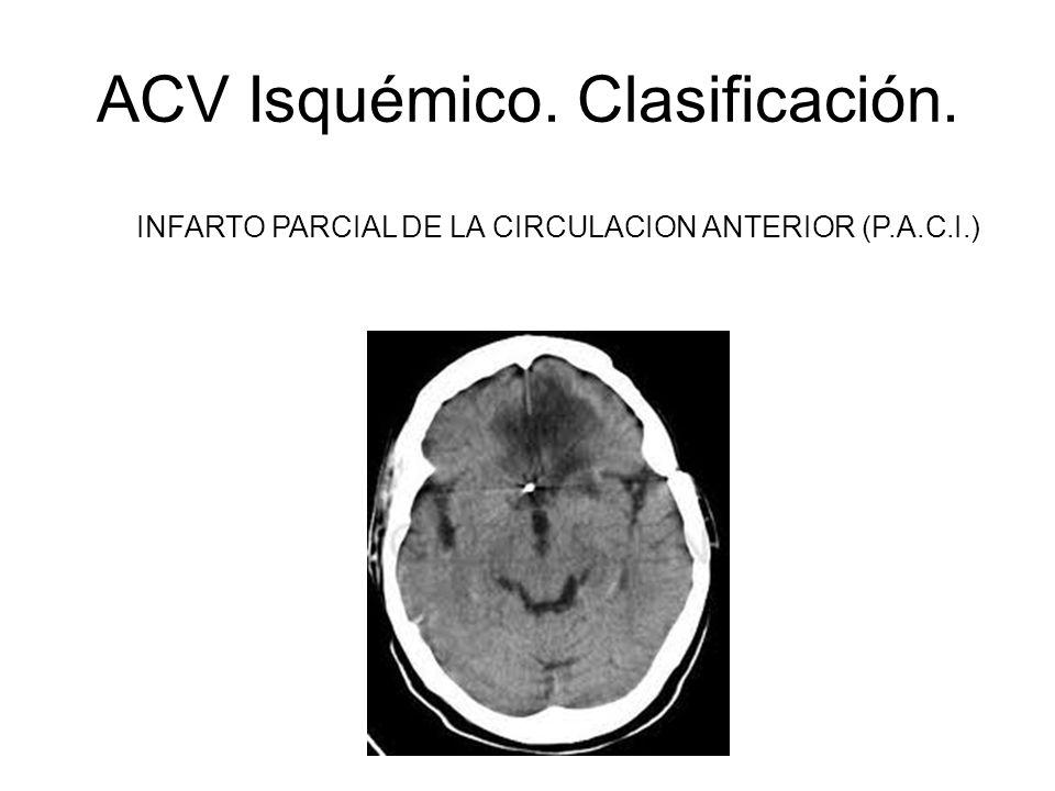 ACV Isquémico. Clasificación. INFARTO PARCIAL DE LA CIRCULACION ANTERIOR (P.A.C.I.)