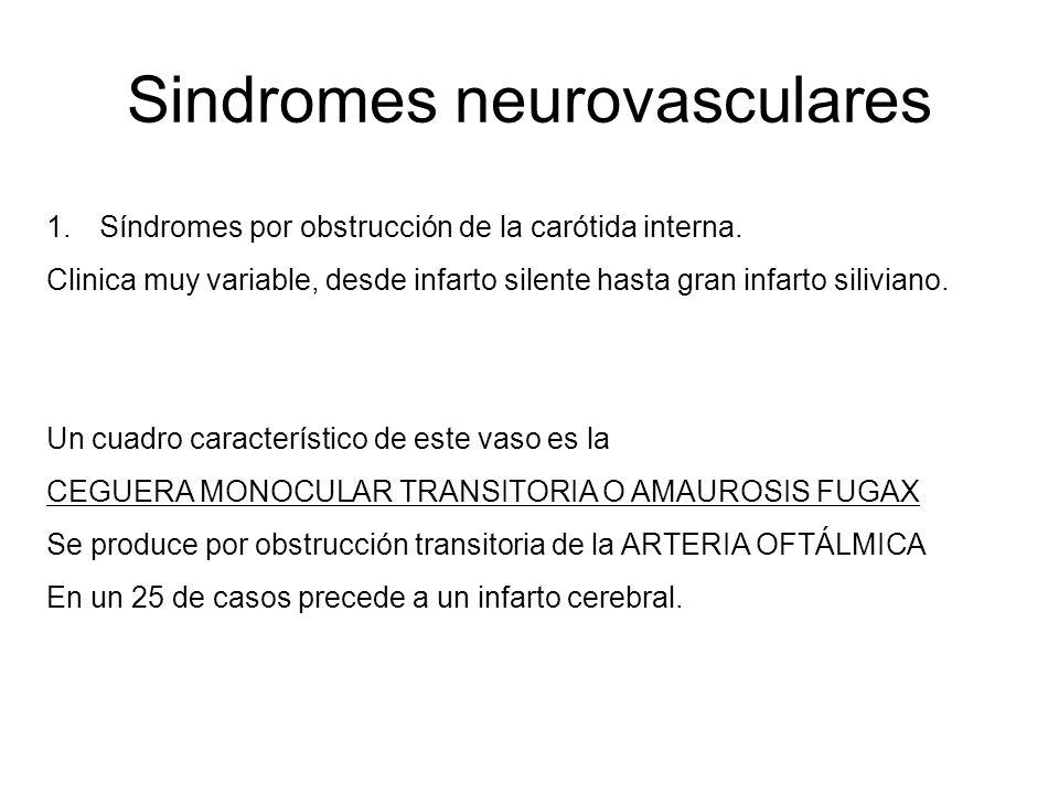 Sindromes neurovasculares 1.Síndromes por obstrucción de la carótida interna. Clinica muy variable, desde infarto silente hasta gran infarto siliviano
