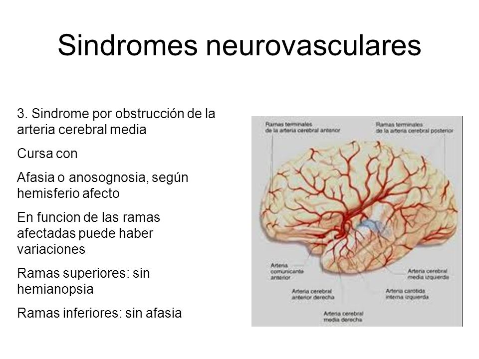 Sindromes neurovasculares 3.