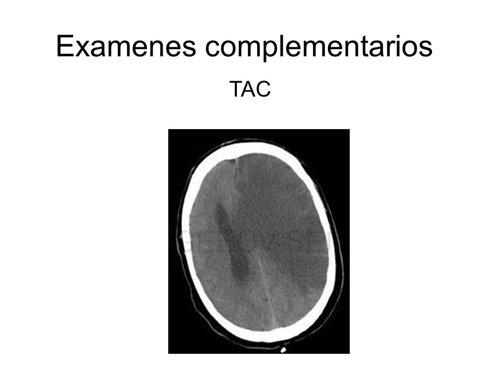 Examenes complementarios TAC