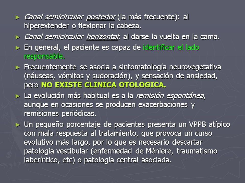 Canal semicircular posterior (la más frecuente): al hiperextender o flexionar la cabeza. Canal semicircular posterior (la más frecuente): al hiperexte