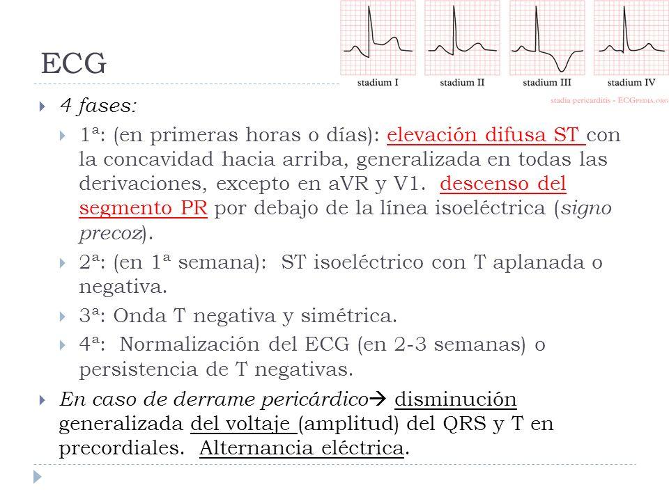 ECG 4 fases: 1ª: (en primeras horas o días): elevación difusa ST con la concavidad hacia arriba, generalizada en todas las derivaciones, excepto en aV