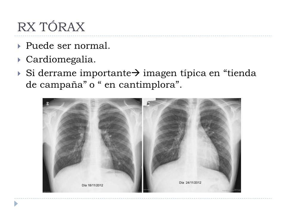 RX TÓRAX Puede ser normal. Cardiomegalia. Si derrame importante imagen típica en tienda de campaña o en cantimplora.