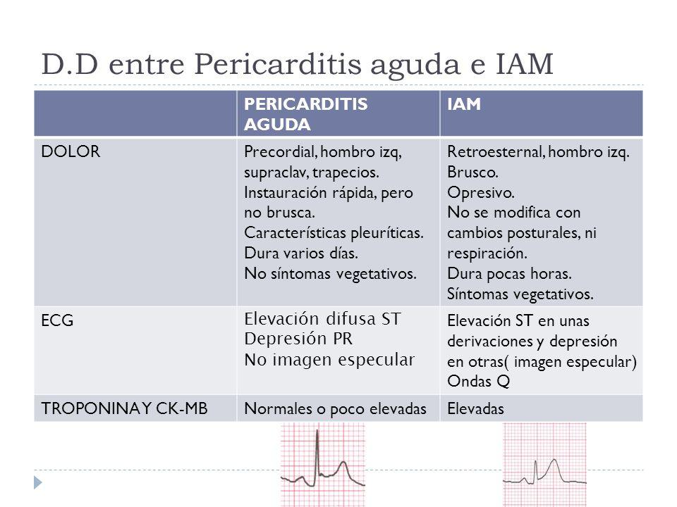 D.D entre Pericarditis aguda e IAM PERICARDITIS AGUDA IAM DOLORPrecordial, hombro izq, supraclav, trapecios. Instauración rápida, pero no brusca. Cara