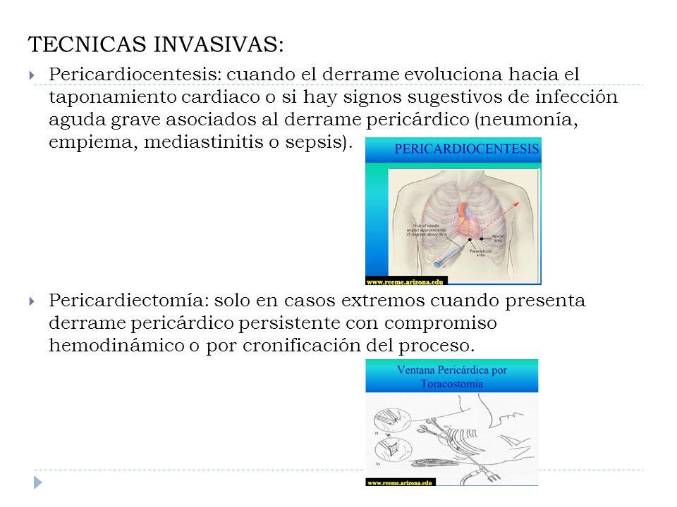 TECNICAS INVASIVAS: Pericardiocentesis: cuando el derrame evoluciona hacia el taponamiento cardiaco o si hay signos sugestivos de infección aguda grav