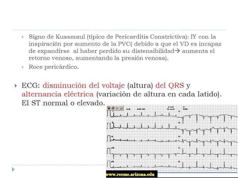 Signo de Kussmaul (típico de Pericarditis Constrictiva): IY con la inspiración por aumento de la PVC( debido a que el VD es incapaz de expandirse al h