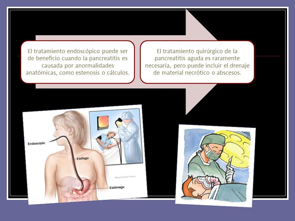 El tratamiento endoscópico puede ser de beneficio cuando la pancreatitis es causada por anormalidades anatómicas, como estenosis o cálculos. El tratam