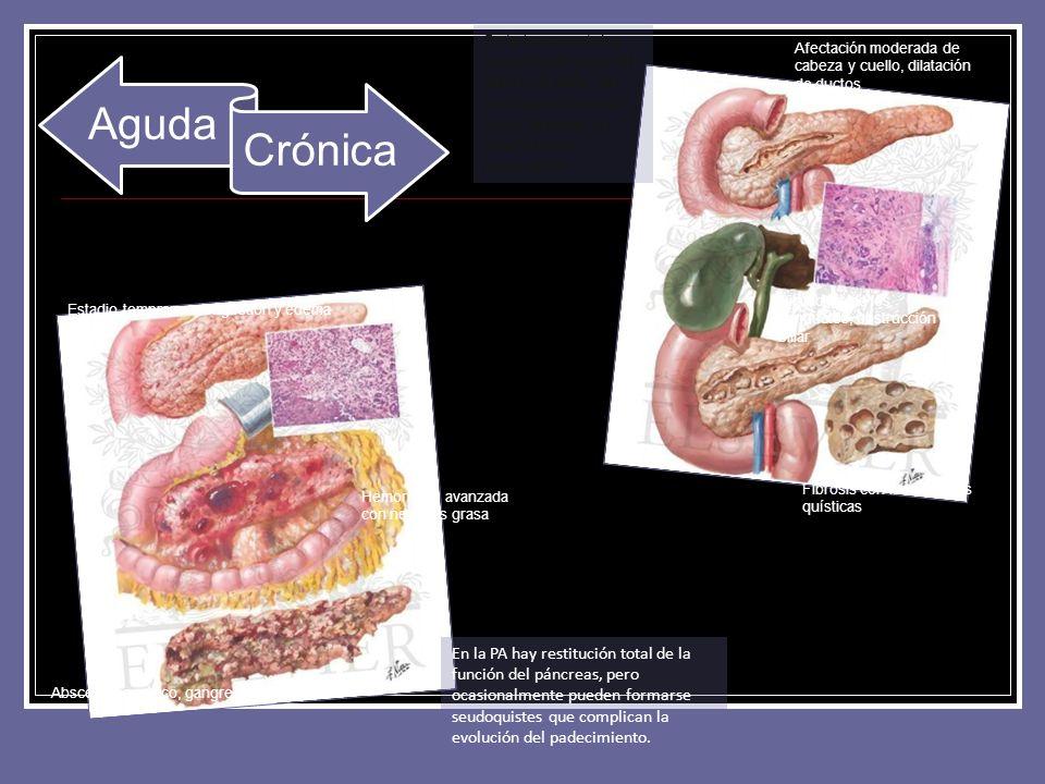 Aguda Crónica En la PA hay restitución total de la función del páncreas, pero ocasionalmente pueden formarse seudoquistes que complican la evolución d