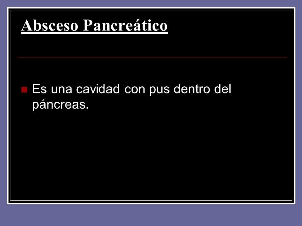 Absceso Pancreático Es una cavidad con pus dentro del páncreas.