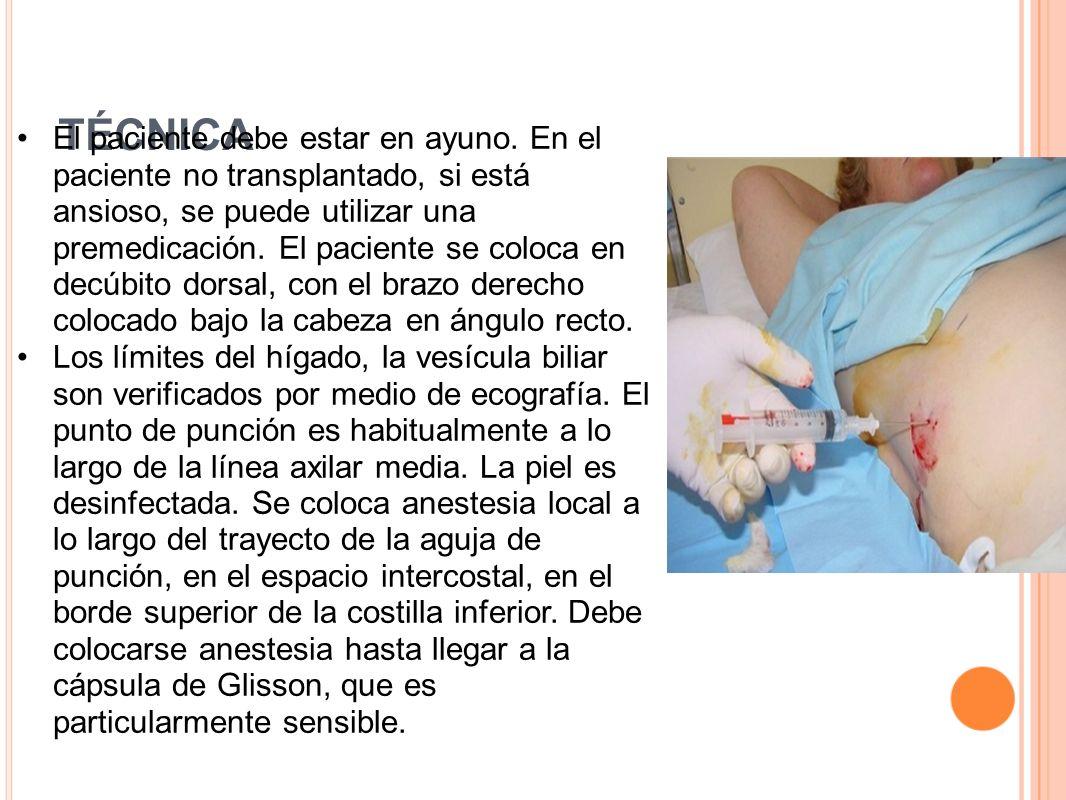 TÉCNICA El paciente debe estar en ayuno. En el paciente no transplantado, si está ansioso, se puede utilizar una premedicación. El paciente se coloca