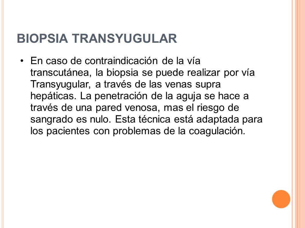 BIOPSIA TRANSYUGULAR En caso de contraindicación de la vía transcutánea, la biopsia se puede realizar por vía Transyugular, a través de las venas supr