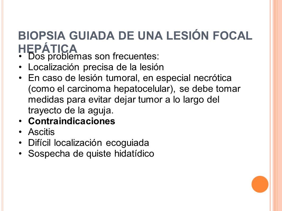 BIOPSIA GUIADA DE UNA LESIÓN FOCAL HEPÁTICA Dos problemas son frecuentes: Localización precisa de la lesión En caso de lesión tumoral, en especial nec