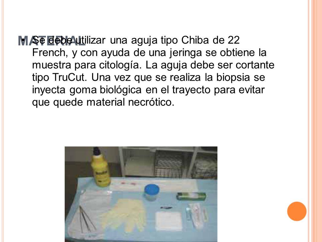 MATERIAL Se debe utilizar una aguja tipo Chiba de 22 French, y con ayuda de una jeringa se obtiene la muestra para citología. La aguja debe ser cortan