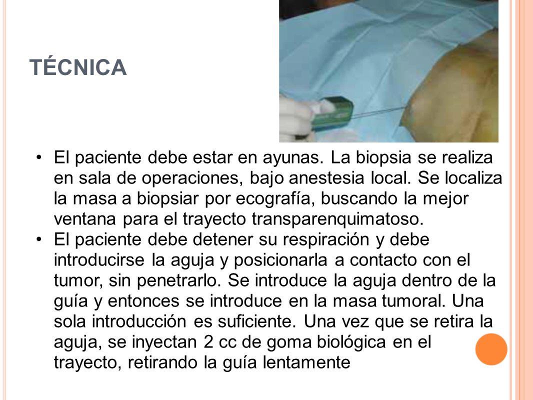 TÉCNICA El paciente debe estar en ayunas. La biopsia se realiza en sala de operaciones, bajo anestesia local. Se localiza la masa a biopsiar por ecogr
