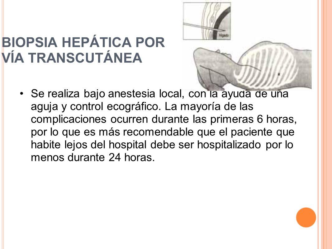 BIOPSIA HEPÁTICA POR VÍA TRANSCUTÁNEA Se realiza bajo anestesia local, con la ayuda de una aguja y control ecográfico. La mayoría de las complicacione