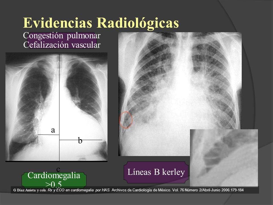 Evidencias Radiológicas Cardiomegalia >0.5 Líneas B kerley a b c Congestión pulmonar Cefalización vascular G Díaz Arrieta y cols. Rx y ECO en cardiome