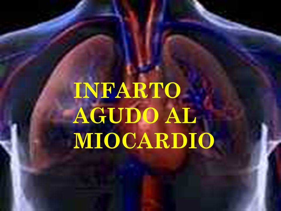 E XAMEN FÍSICO La apariencia general de los pacientes con infarto de miocardio varía de acuerdo a los síntomas.