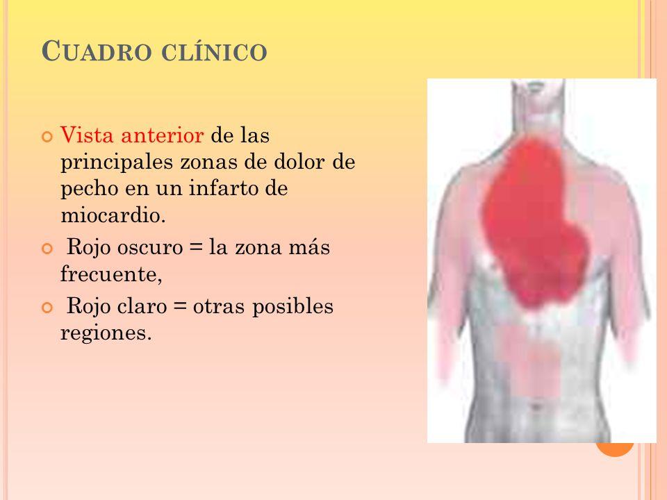 C UADRO CLÍNICO Vista anterior de las principales zonas de dolor de pecho en un infarto de miocardio. Rojo oscuro = la zona más frecuente, Rojo claro