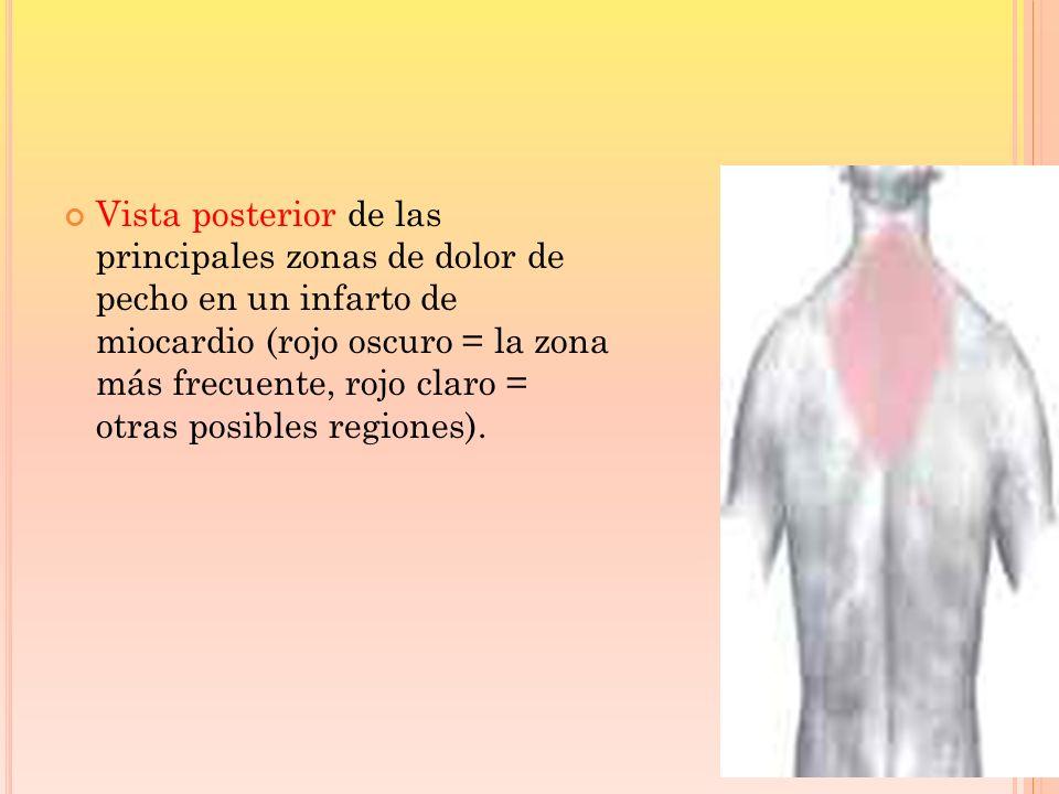 Vista posterior de las principales zonas de dolor de pecho en un infarto de miocardio (rojo oscuro = la zona más frecuente, rojo claro = otras posible