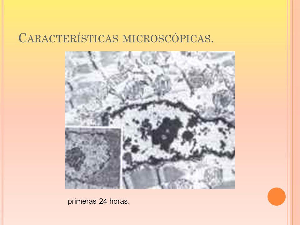 C ARACTERÍSTICAS MICROSCÓPICAS. primeras 24 horas.