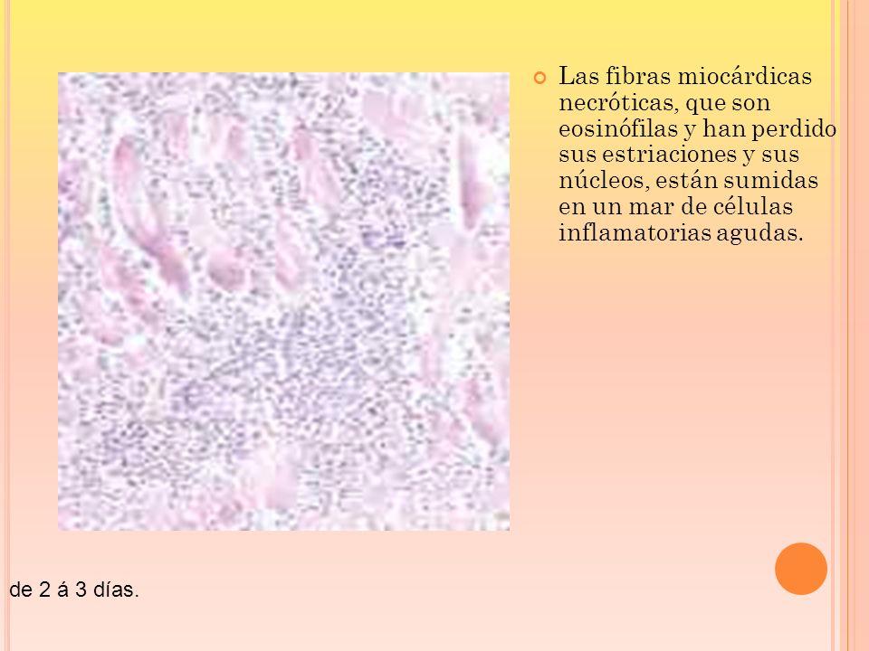 de 2 á 3 días. Las fibras miocárdicas necróticas, que son eosinófilas y han perdido sus estriaciones y sus núcleos, están sumidas en un mar de células