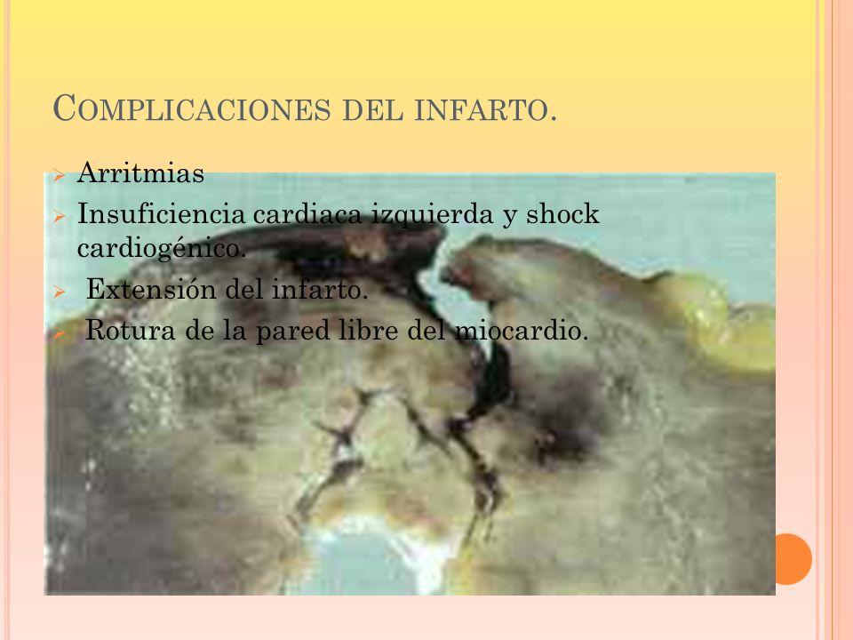 C OMPLICACIONES DEL INFARTO. Arritmias Insuficiencia cardiaca izquierda y shock cardiogénico. Extensión del infarto. Rotura de la pared libre del mioc