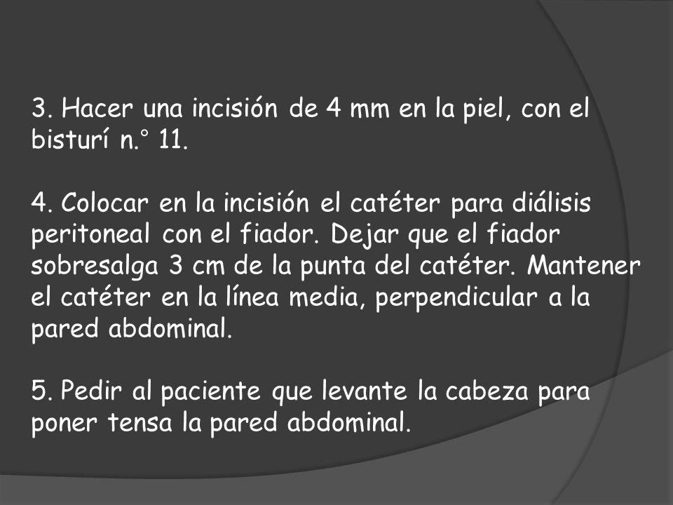 3. Hacer una incisión de 4 mm en la piel, con el bisturí n.° 11. 4. Colocar en la incisión el catéter para diálisis peritoneal con el fiador. Dejar qu