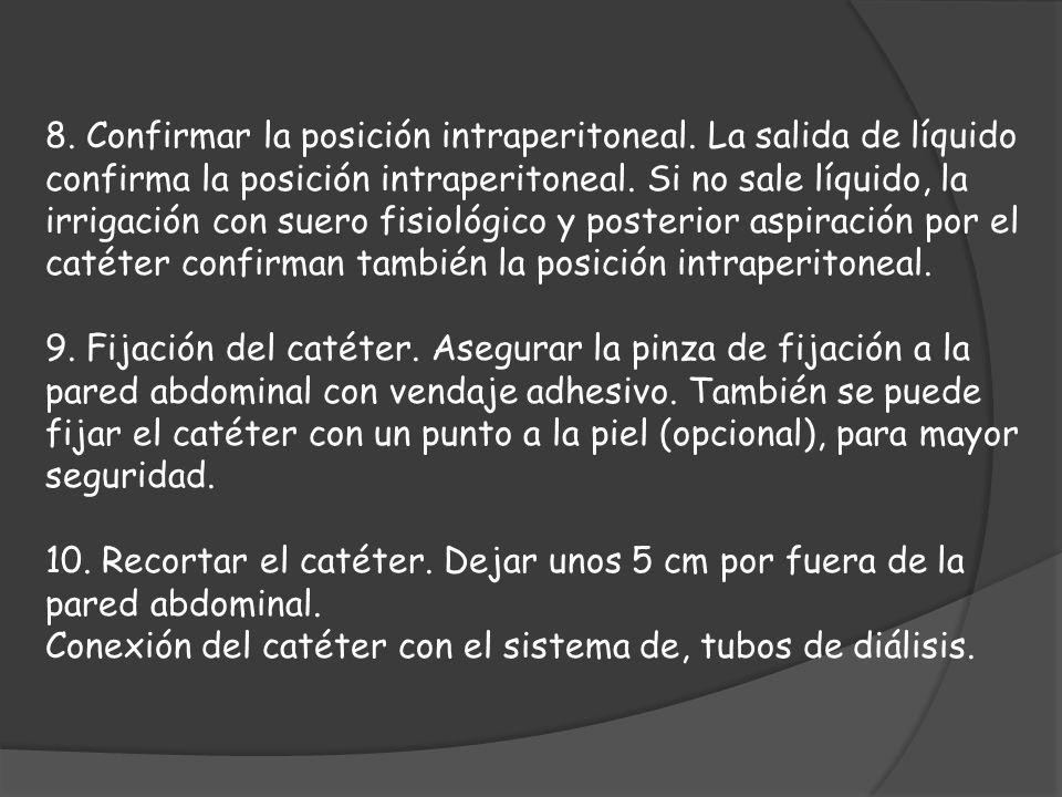 8. Confirmar la posición intraperitoneal. La salida de líquido confirma la posición intraperitoneal. Si no sale líquido, la irrigación con suero fisio