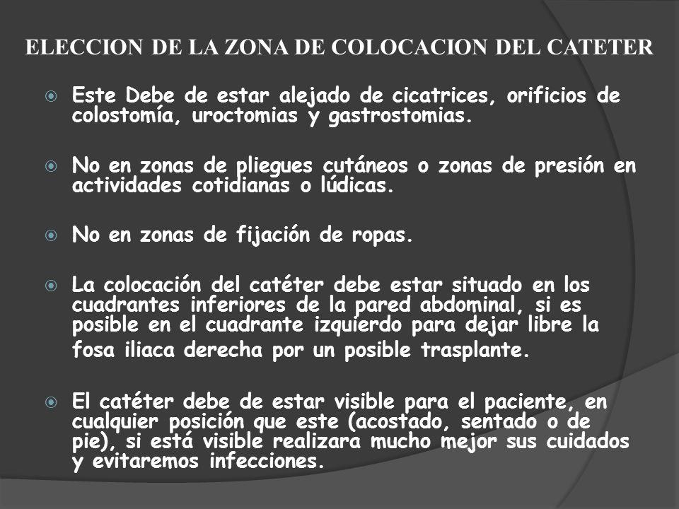 ELECCION DE LA ZONA DE COLOCACION DEL CATETER Este Debe de estar alejado de cicatrices, orificios de colostomía, uroctomias y gastrostomias. No en zon