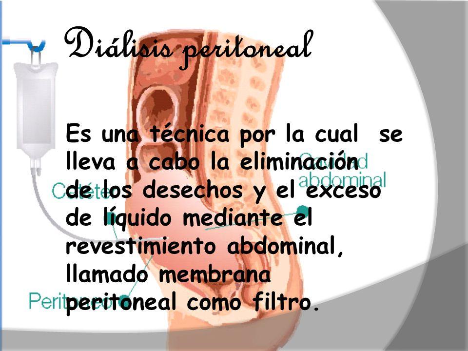 Diálisis peritoneal Es una técnica por la cual se lleva a cabo la eliminación de los desechos y el exceso de líquido mediante el revestimiento abdomin