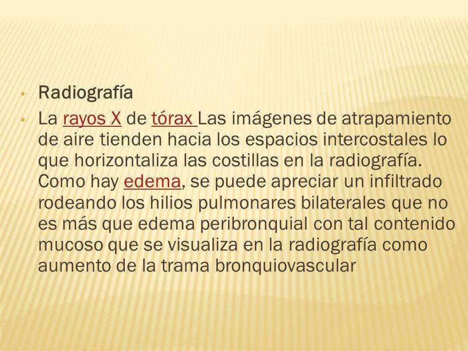 Radiografía La rayos X de tórax Las imágenes de atrapamiento de aire tienden hacia los espacios intercostales lo que horizontaliza las costillas en la radiografía.