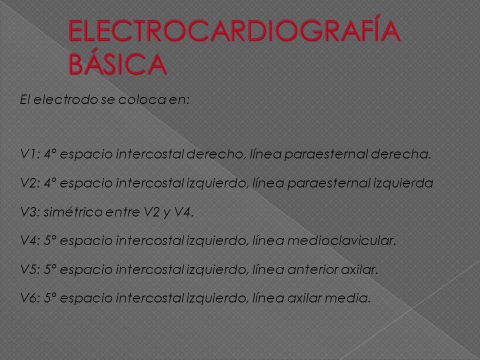 El electrodo se coloca en: V1: 4º espacio intercostal derecho, línea paraesternal derecha. V2: 4º espacio intercostal izquierdo, línea paraesternal iz