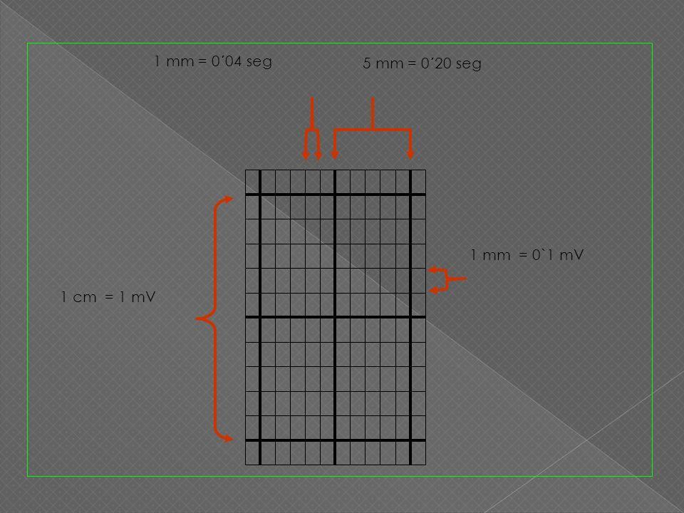 1 mm = 0´04 seg 5 mm = 0´20 seg 1 mm = 0`1 mV 1 cm = 1 mV