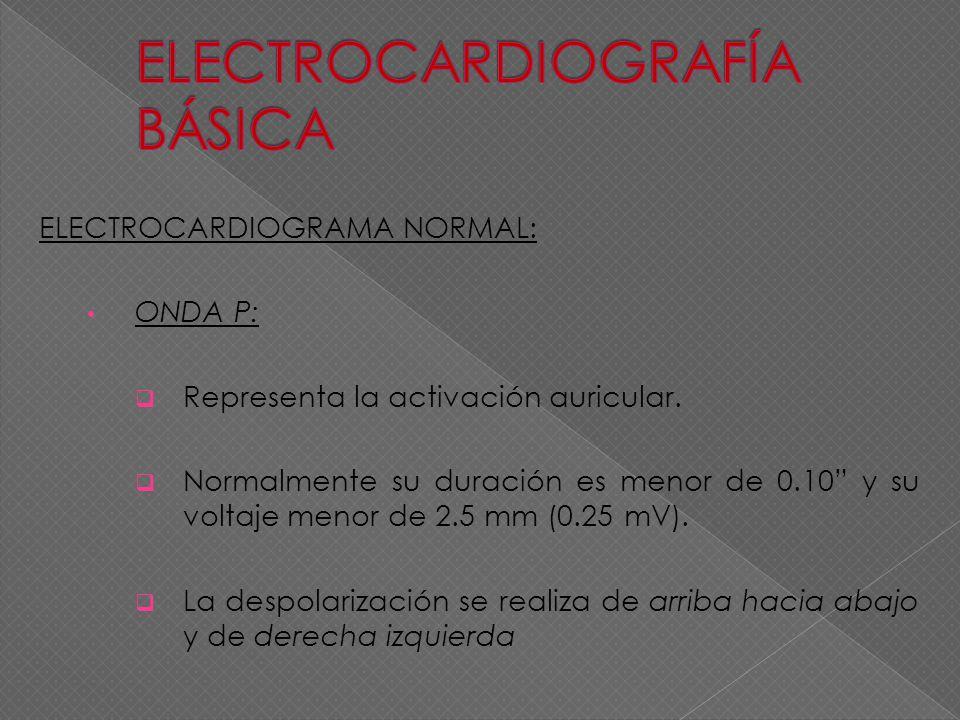 ELECTROCARDIOGRAMA NORMAL: ONDA P: Representa la activación auricular. Normalmente su duración es menor de 0.10 y su voltaje menor de 2.5 mm (0.25 mV)
