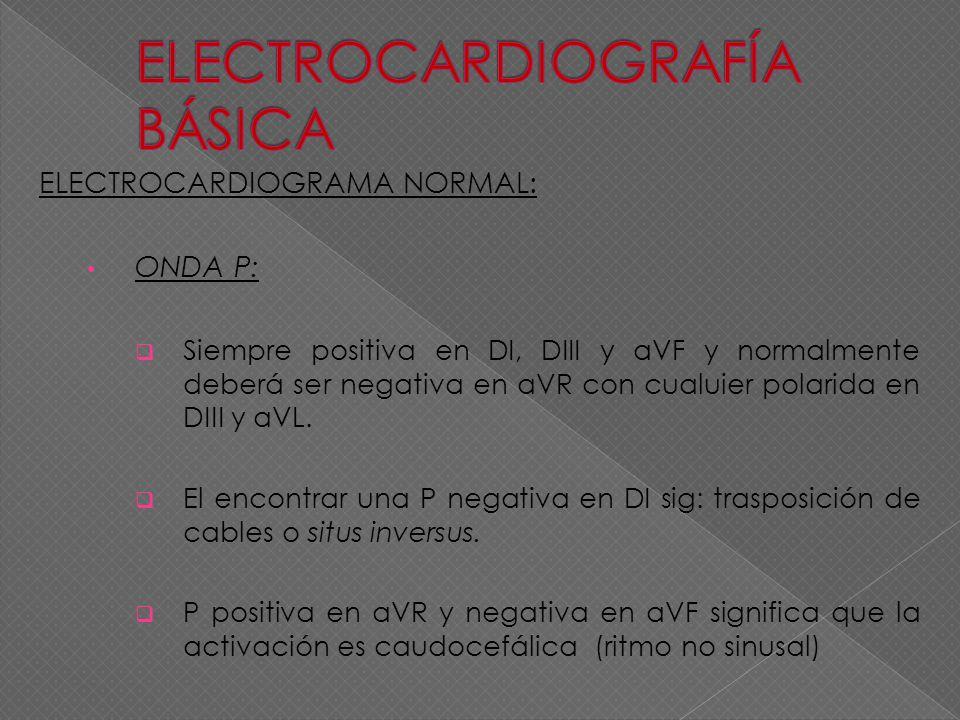 ELECTROCARDIOGRAMA NORMAL: ONDA P: Siempre positiva en DI, DIII y aVF y normalmente deberá ser negativa en aVR con cualuier polarida en DIII y aVL. El