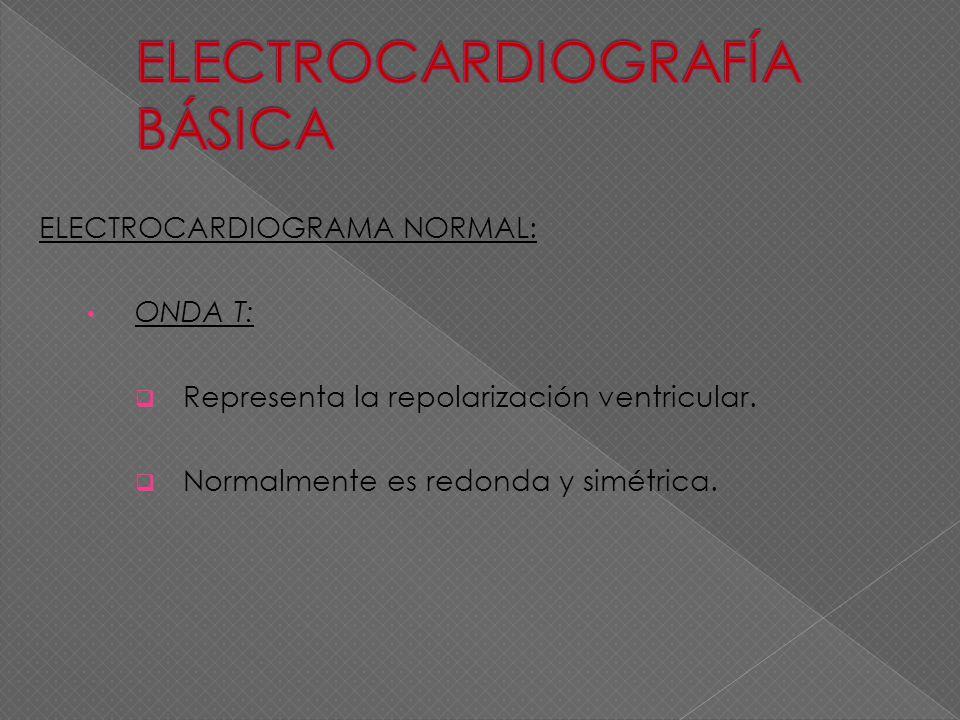 ELECTROCARDIOGRAMA NORMAL: ONDA T: Representa la repolarización ventricular. Normalmente es redonda y simétrica.