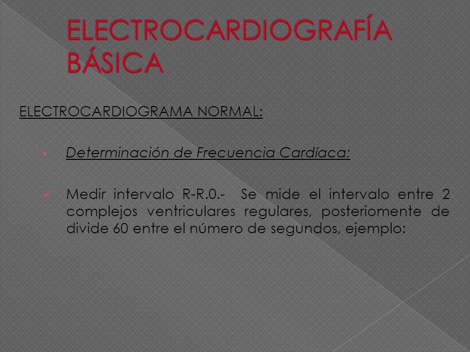 ELECTROCARDIOGRAMA NORMAL: Determinación de Frecuencia Cardíaca: Medir intervalo R-R.0.- Se mide el intervalo entre 2 complejos ventriculares regulare