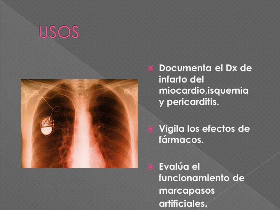 Documenta el Dx de infarto del miocardio,isquemia y pericarditis. Vigila los efectos de fármacos. Evalúa el funcionamiento de marcapasos artificiales.