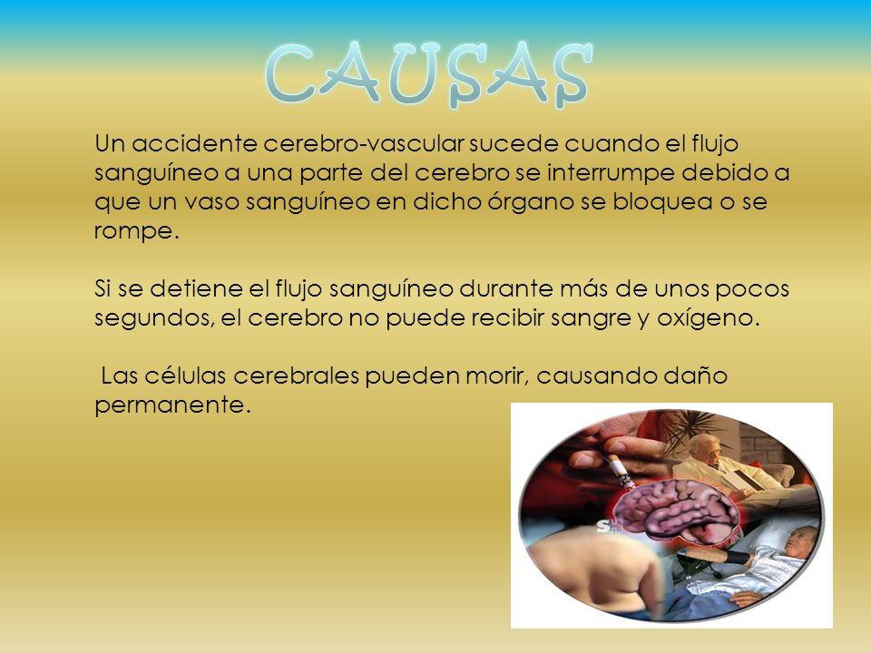 Un accidente cerebro-vascular sucede cuando el flujo sanguíneo a una parte del cerebro se interrumpe debido a que un vaso sanguíneo en dicho órgano se