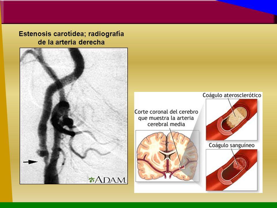 Estenosis carotídea; radiografía de la arteria derecha