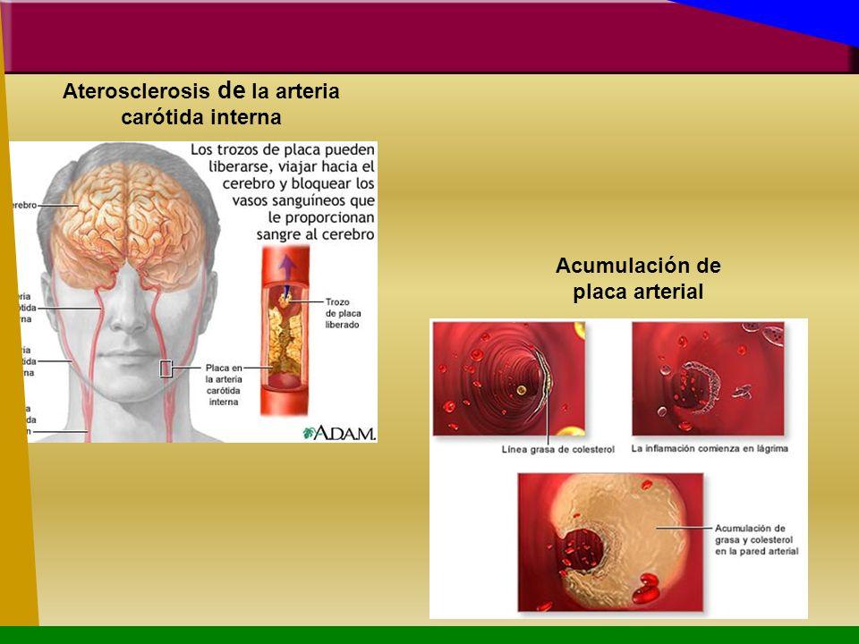 Aterosclerosis de la arteria carótida interna Acumulación de placa arterial