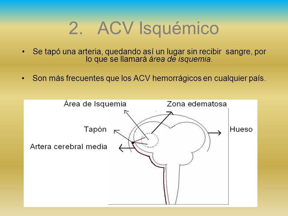 2.ACV Isquémico Se tapó una arteria, quedando así un lugar sin recibir sangre, por lo que se llamará área de isquemia. Son más frecuentes que los ACV