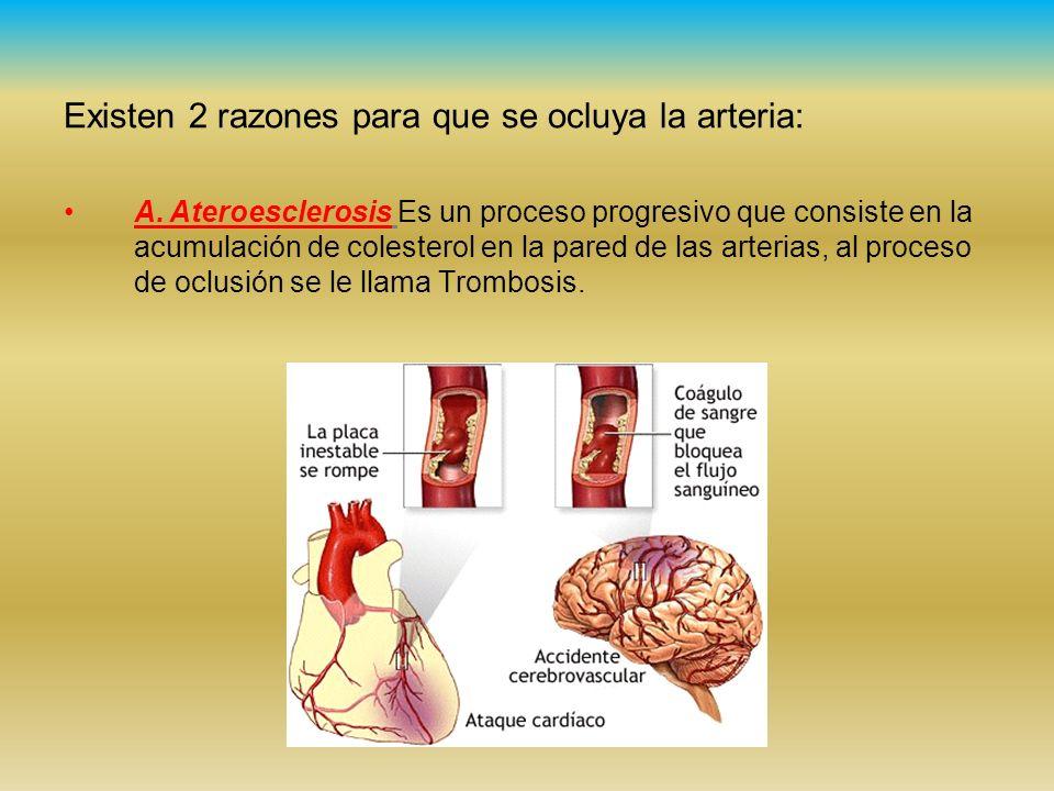 Existen 2 razones para que se ocluya la arteria: A.Ateroesclerosis Es un proceso progresivo que consiste en la acumulación de colesterol en la pared d