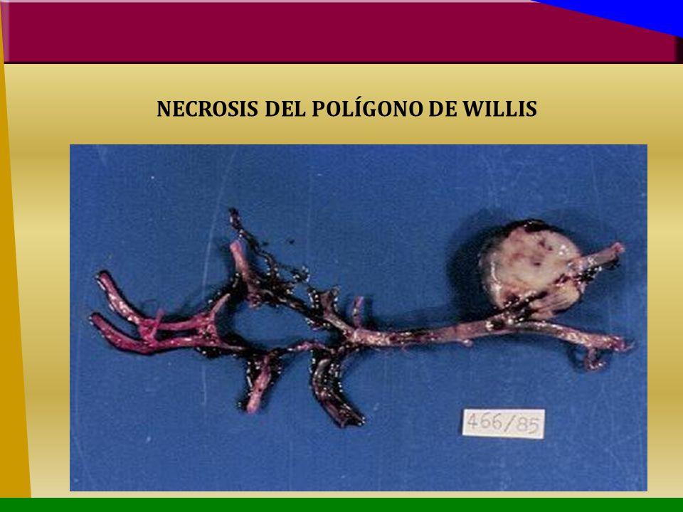 NECROSIS DEL POLÍGONO DE WILLIS