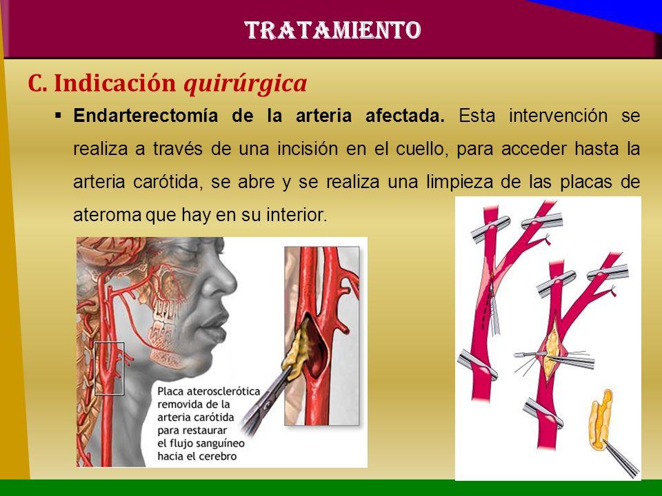 C. Indicación quirúrgica Endarterectomía de la arteria afectada. Esta intervención se realiza a través de una incisión en el cuello, para acceder hast