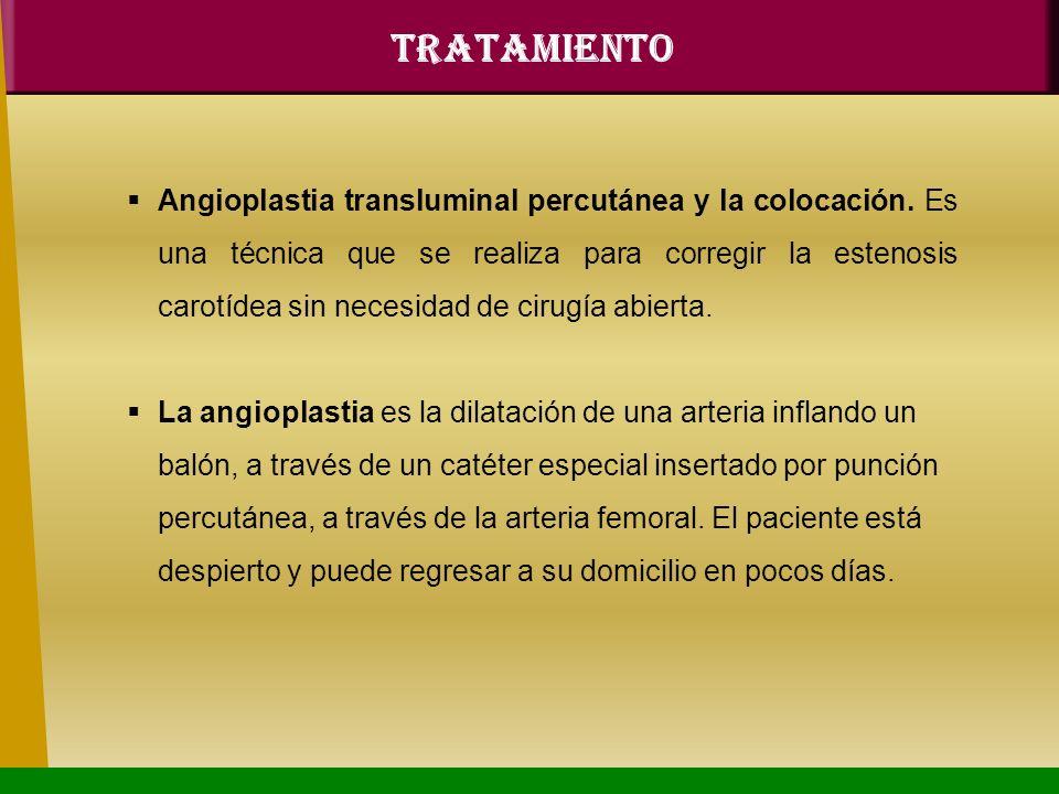 Angioplastia transluminal percutánea y la colocación. Es una técnica que se realiza para corregir la estenosis carotídea sin necesidad de cirugía abie