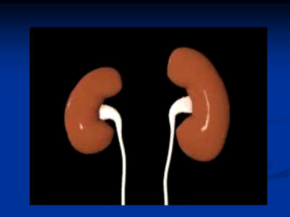 INDICACIONES DIÁLISIS O HEMOFILTRACIÓN Hiperpotasemia Hiperpotasemia Acidosis metabólica Acidosis metabólica Sobrecarga de fluido (que usualmente se manifiesta con edema de pulmón) Sobrecarga de fluido (que usualmente se manifiesta con edema de pulmón) Pericarditis Pericarditis Y en pacientes sin falla renal, envenenamiento agudo con toxinas dialisables, como el litio Y en pacientes sin falla renal, envenenamiento agudo con toxinas dialisables, como el litio